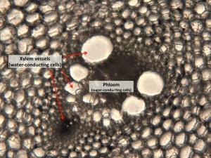 Asparagus vascular bundle at 100X magification